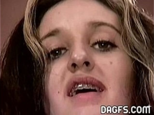 Let me jizz your braces from the